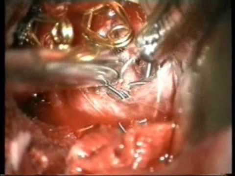 Previously Coiled Aneurysms Microsurgery - Experience on group of 81 patients - Video 1