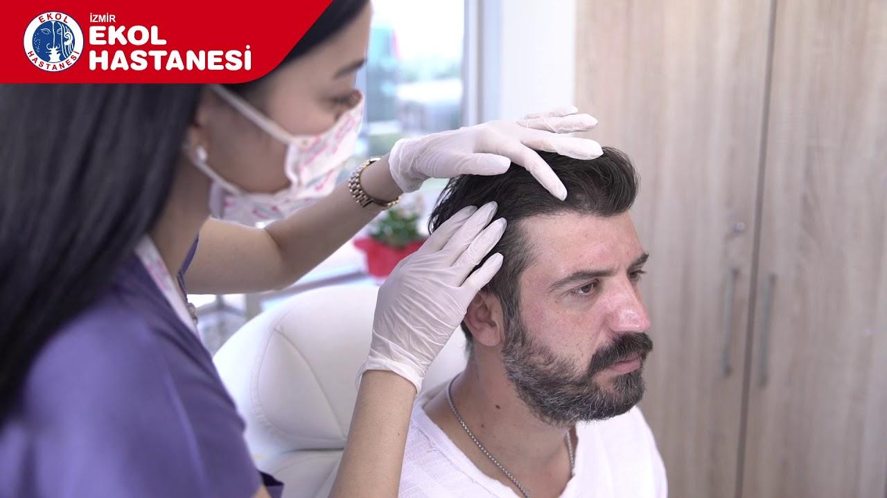 Saç Ekimi - Onur Ergül - İzmir Ekol Hastanesi