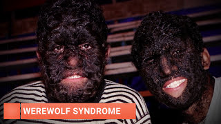 Video 5 Most Shocking Genetic Mutations In Humans MP3, 3GP, MP4, WEBM, AVI, FLV Juli 2018