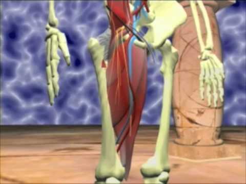 hernioplastia - Descripción anatómica de la región inguinal, tanto interna como externa en un modelo tridimensional virtual en 3D diseñado por ordenador. Técnica quirúrgica ...