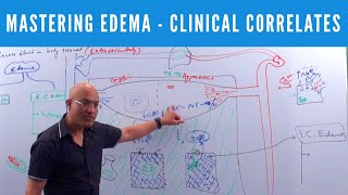Edema by Dr. Najeeb Lectures. To watch the complete lecture sign up at https://www.DrNajeebLectures.com. In member's area access 700+ videos on Basic Medical Sciences & Clinical Medicine. New videos every week with download option.
