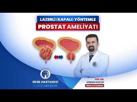 Lazerli (Kapalı) Yöntemle Prostat Ameliyatı - Opr. Dr. Osman Gücük - İzmir Ekol Hastanesi
