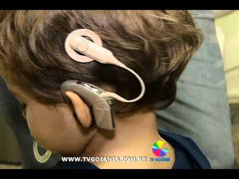 Cirurgia auditiva é esperança para surdos