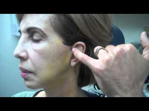 Facelift – 1 Week Recovery