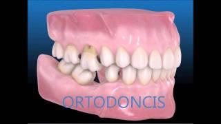 Consecuencias de una pérdida dentaria