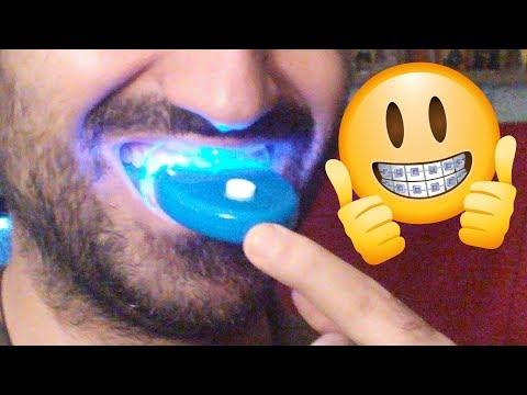 Δοκιμάζω Τα Μασελάκια Που Λευκαίνουν Τα Δόντια || Greek Unboxing & Review