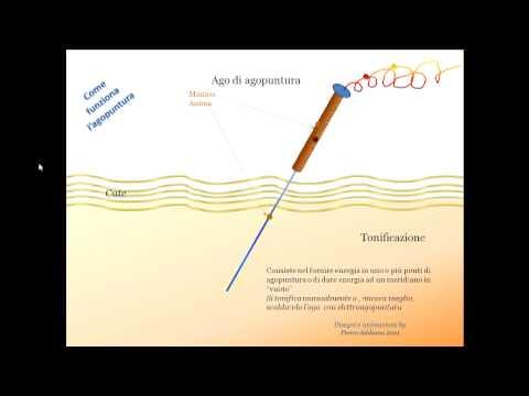 salute - che cos'è l'agopuntura