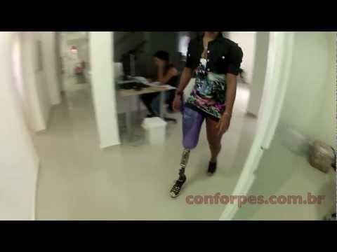 Protese Camille - Acima do Joelho com Salto Alto - Ortopedia Conforpés