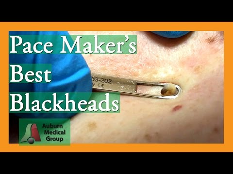 Blackheads on Blackheads!