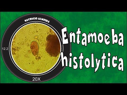 Entamoeba histolytica/dispar