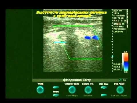 УЗИ позвоночных артерий