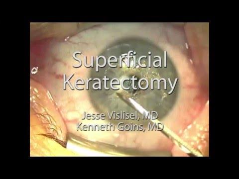 Superficial Keratectomy (SK)