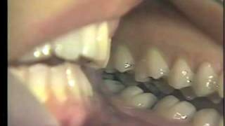 Occlusion: Balancing Interferences And Bruxism