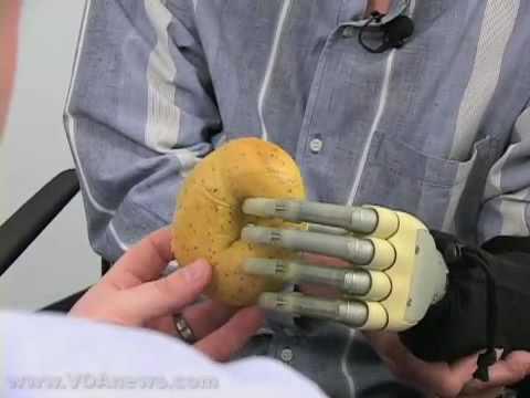 Jak vypadá a funguje bionická ruka?
