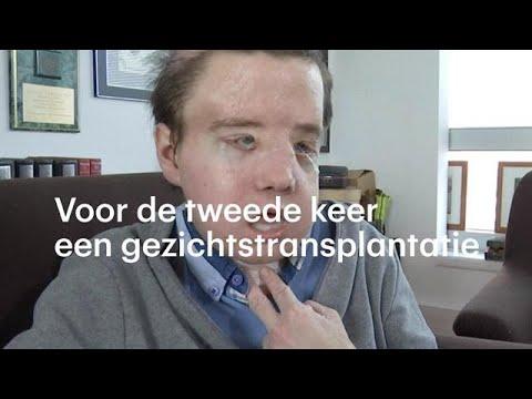 Jérôme na gezichtstransplantatie: 'Ik ben 20 jaar jonger' - RTL NIEUWS