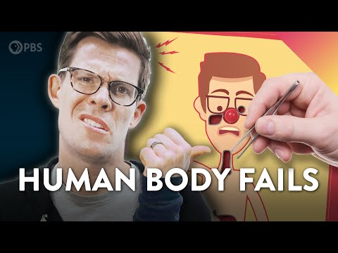Evolution FAILS in the Human Body