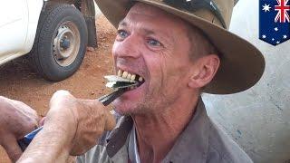 Mężczyzna usuwa zęby kombinerkami!