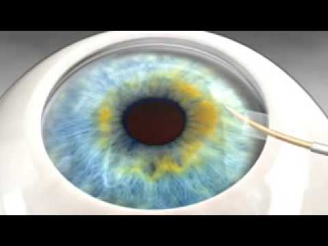 Cypass glaucoma surgery