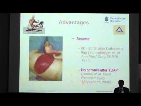Доклад главного врача клиники пластической и эстетической хирургии  больницы Sana Gerresheim Кристофа Андре «Применение TDAP-лоскута в органосохраняющей хирургии рака молочной железы». Германия.