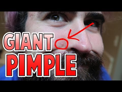 Giant Pimple Popping
