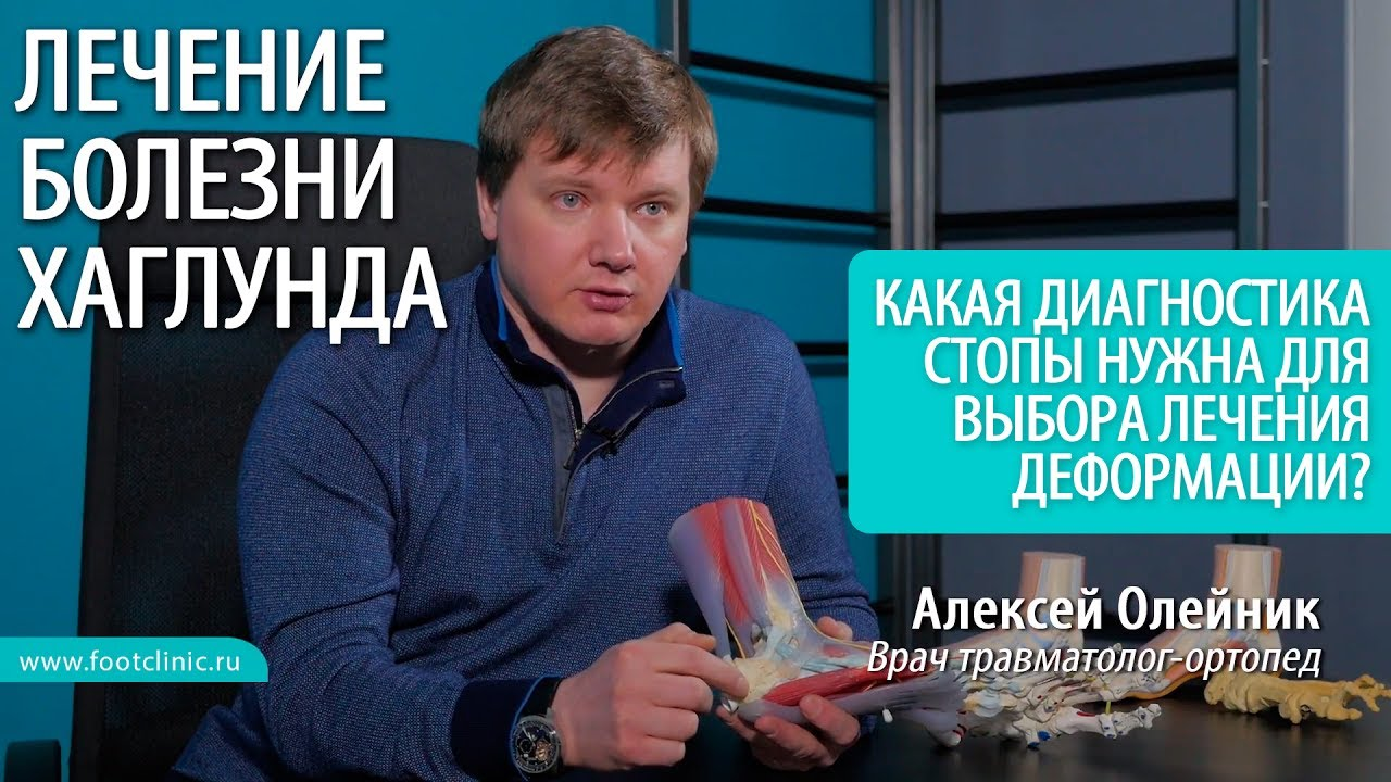 Какая диагностика стопы нужна для выбора лечения деформации Хаглунда? - хирургия стопы Алексея Олейника
