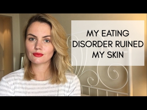 My Eating Disorder Ruined My Skin (with photo)