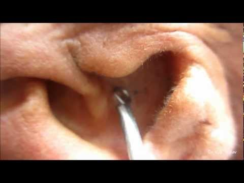 Black Heads On Ear Pinna – Extraction