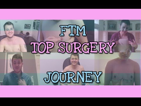 ftm - Hey. As corny as this video is, it represents how I view myself and my life before and after surgery. This video is filled with comparisons and little clips ...