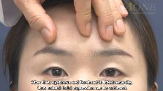 Video Endoscopic forehead-eyebrow lift of young people [Eng. dubbed with subtitles] MP3, 3GP, MP4, WEBM, AVI, FLV November 2018