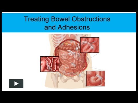 Treating Bowel Obstructions and Adhesions Non-Surgically