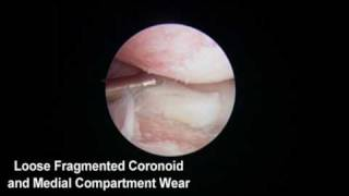 Gulf Coast Veterinary Surgery:  Elbow Arthroscopy
