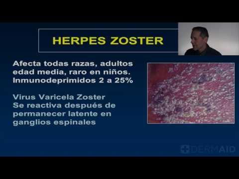 Herpes Zoster en Espanol