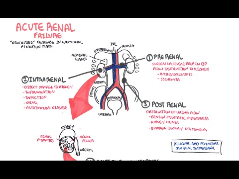 Learn About Acute Renal Failure