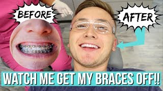 Video WATCH ME GET MY BRACES OFF!! *amazing transformation* MP3, 3GP, MP4, WEBM, AVI, FLV November 2018