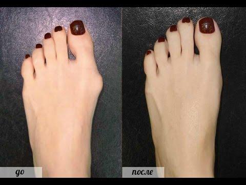 лекарство от подагры фулфлекс. профилактика косточек на ногах