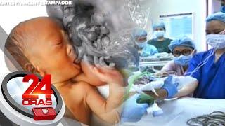 Video 24 Oras: Baby Ned na may parasitic twin, inoperahan na MP3, 3GP, MP4, WEBM, AVI, FLV Mei 2019