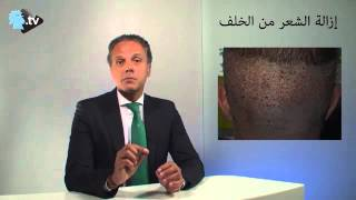 Hair loss solutions on annahar webtv