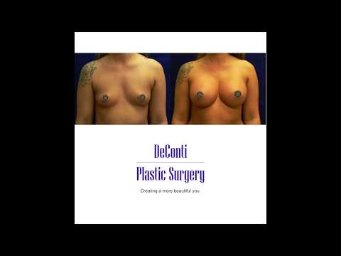 Breast Augment with smooth gel implants.