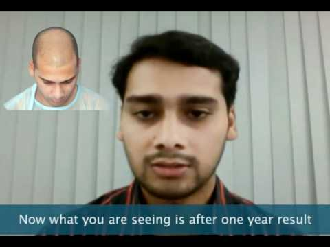 hair transplantation in India - hair transplantation in india, hyderabad @ Dr. Madhu's for delhi, mumbai, kolkata and bangalore Clients for satisfactory natural results and also for good st...