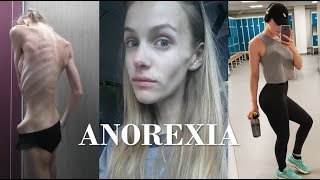 Video anorexic to athlete | my story MP3, 3GP, MP4, WEBM, AVI, FLV Februari 2019