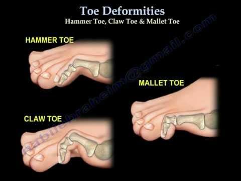 Mallet Toe - Foot & Ankle - Orthobullets.com