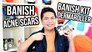 Previous Video : https://www.youtube.com/watch?v=z3Jg-uCYnz4Hey Guys! This video is all about Banish Kit from Banish.. Great product for acne scars.Where to buy your dermaroller? Check out my affiliate link below.Banish Kit Affiliate Link - http://bit.ly/1mSaJfPBanish Acne Scars website - http://banishacnescars.com/Daisy's YouTube Channel - https://www.youtube.com/user/daiserz89BANISH ACNE SCARSBANISH KITDERMA ROLLERDERMAROLLERACNEACNE SCARSBENEFITS OF DERMA ROLLERHOW TO USE DERMA ROLLERHOW TO TREAT AND HEAL ACNE SCARSSKINSKIN CARESKIN CARE PRODUCTThis Channel is all about my mixed ideas. Vlogs. Lifestyle. Skin Care. Hauls. Travel. Food. Product Review. DIY. Demo. Etc.Come and join me to the evolution of my Mixed Ideas! Please SUBSCRIBE & Follow Me :)JoeMixed Blog Site : http://joemixed.wordpress.com/JoeMixed Facebook Page : https://www.facebook.com/joemixedJoeMixed Instagram : http://instagram.com/joemixedFor business inquiries : joemixed01@gmail.com