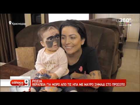 Μωρό με μαύρο σημάδι στο πρόσωπο θεραπέυεται στην Ρωσία | 01/12/2019 | ΕΡΤ