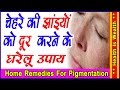 Home Remedies For Pigmentation