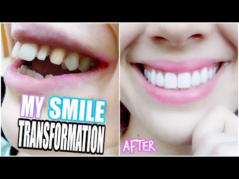 MY SMILE TRANSFORMATION!   Getting Porcelain Veneers!