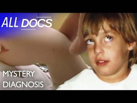 The Baby Who Changed Colours: Segawa's Dystonia | Medical Documentary | Reel Truth