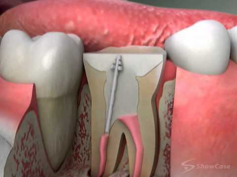 Dental Core Build Up Cost