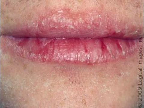 how to get rid of chapped skin around lips