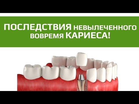 Зубные коронки: зубная коронка на цельнолитой культевой вкладке