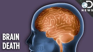 There are many conditions that can affect consciousness, but none as devastating as brain death. What happens to the body...